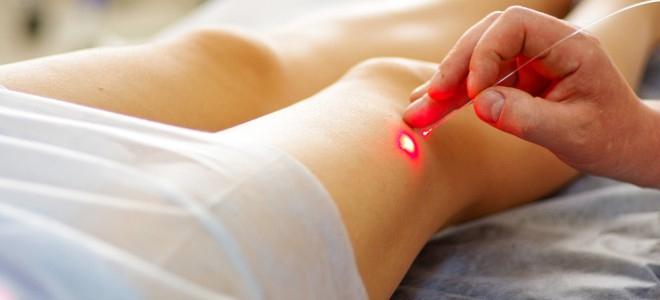 Terapia cu laser