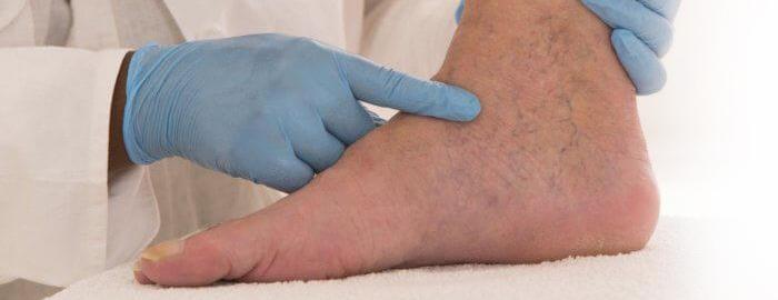 tratamentul în stadiul târziu varicoză
