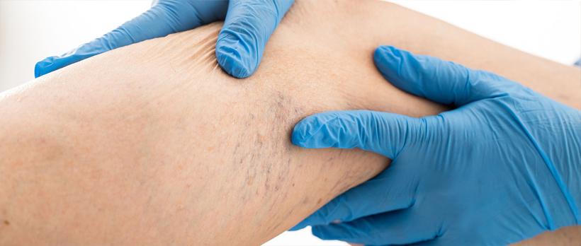 ce proceduri pentru varicoză